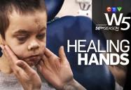 Healing Hands: W5