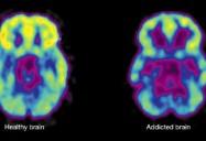 Brain Chemistry: Drug Class Series (Season 3)